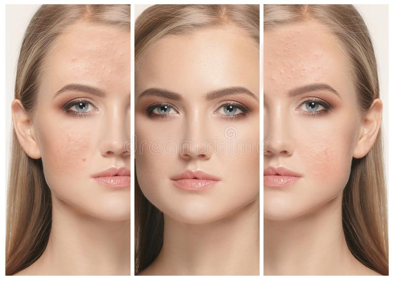 Woman before and after treatment. The female face of woman before and after treatment, collage stock photography