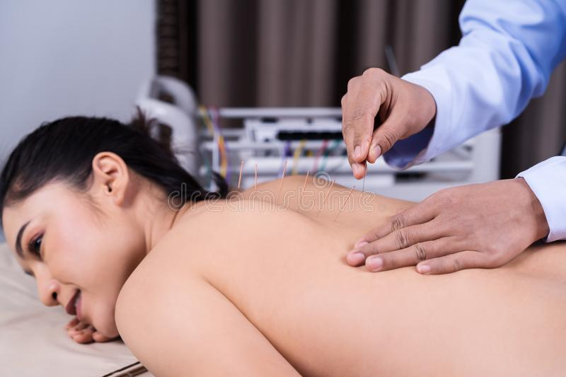 Woman undergoing acupuncture treatment on back royalty free stock image