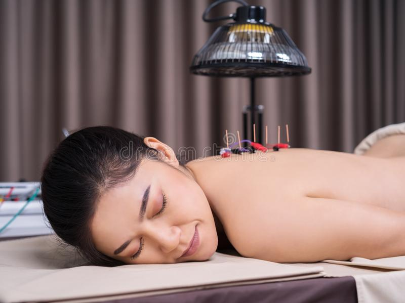 Woman undergoing acupuncture treatment with electrical stimulator on back royalty free stock images