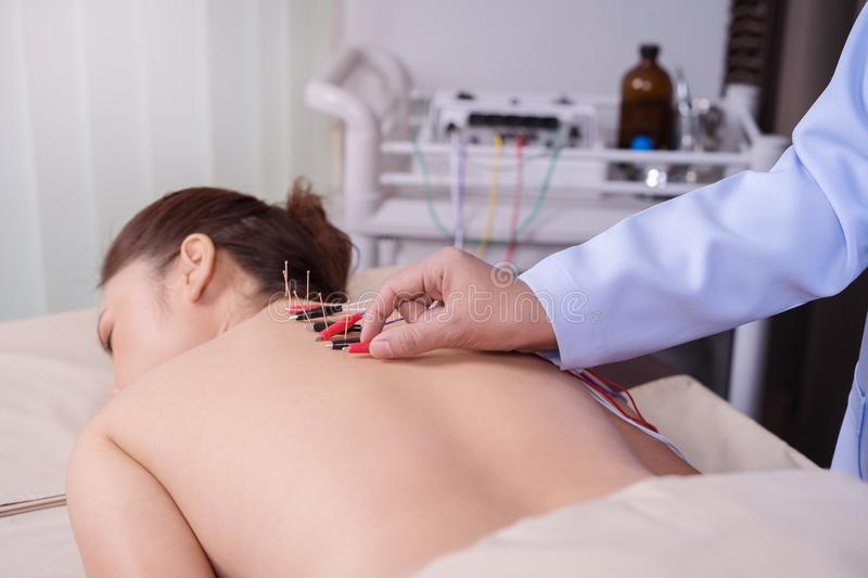 Woman undergoing acupuncture treatment with electrical stimulator on back royalty free stock photography