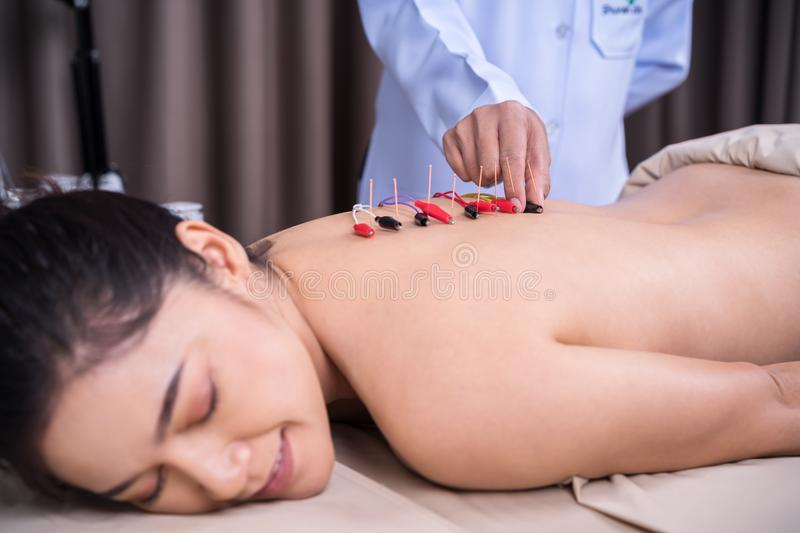 Woman undergoing acupuncture treatment with electrical stimulator on back royalty free stock image