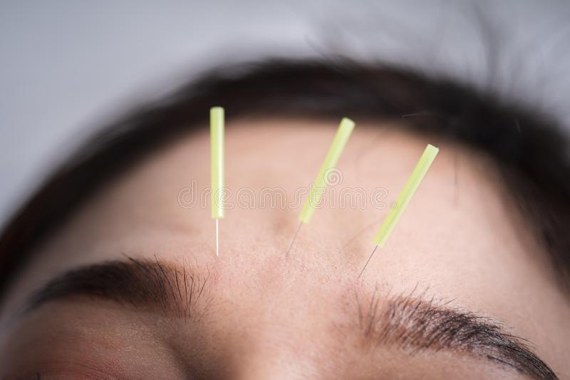 Woman undergoing acupuncture treatment on head stock image