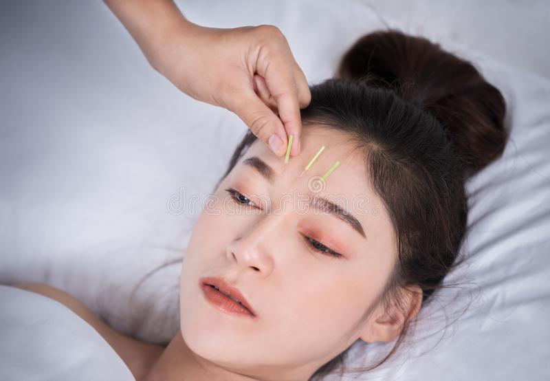 Woman undergoing acupuncture treatment on head royalty free stock image