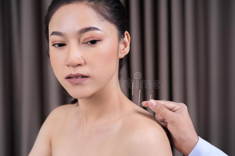Woman undergoing acupuncture treatment on shoulder royalty free stock images
