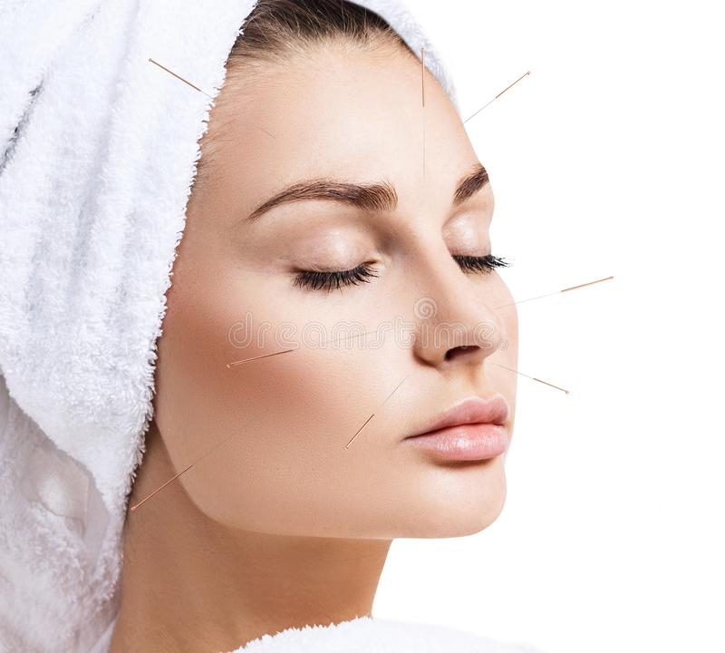Woman undergoing acupuncture treatment. stock image