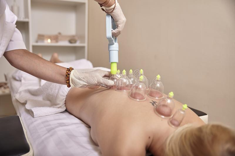 Woman using vacuum gun for cupping therapy, on womans back, laying on bed, close up. royalty free stock images