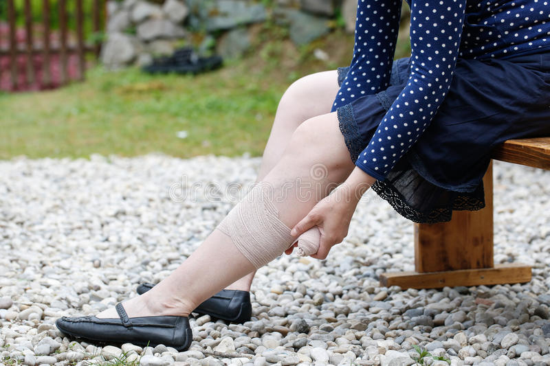 Woman with varicose veins applying compression bandage. Woman with painful varicose and spider veins on her legs, applying compression bandage, self-helping royalty free stock images