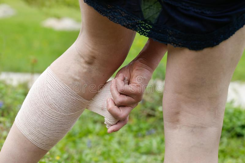 Woman with varicose veins applying compression bandage royalty free stock images