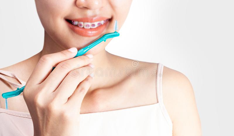 woman is wearing braces and using a cleaning teeth.. royalty free stock image