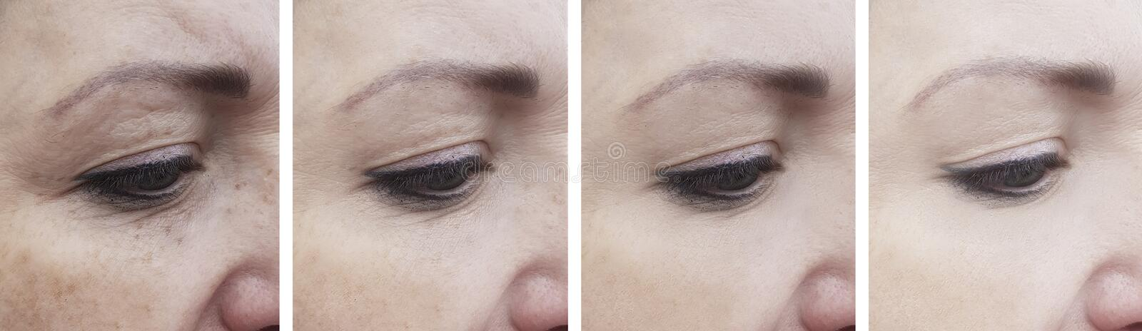 Woman wrinkles before effect removal after mature treatment correction lifting correction. Woman  wrinkles before and after  correction  lifting treatment mature stock images