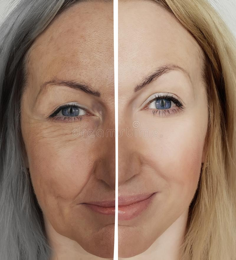 Woman wrinkles face difference process before and after aging concept. Woman wrinkles face before after aging concept difference process royalty free stock images