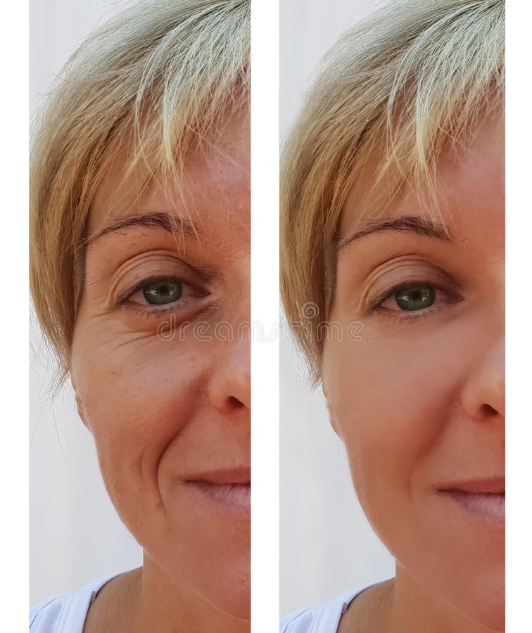 Woman wrinkles on face dermatology treatment correction surgeon before and after health anti-aging procedures royalty free stock images