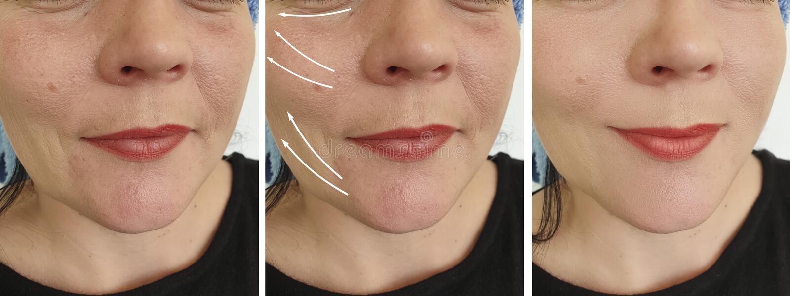 Woman wrinkles face results  arrow  collage correction lifting  contour tension  before and after contrast treatment. Woman wrinkles face before and after stock image