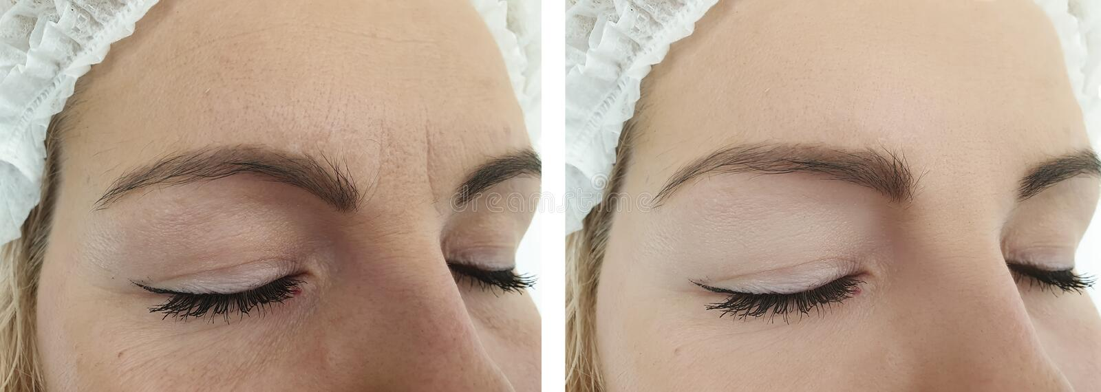 Woman wrinkles before and after mature correction removal treatment procedures. Woman wrinkles before  after removal procedures treatment mature royalty free stock photography