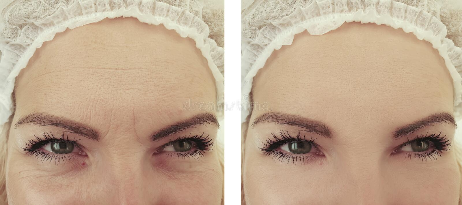 Woman wrinkles before and after rejuvenation mature correction removal treatment procedures. Woman wrinkles before  after removal procedures treatment mature royalty free stock image