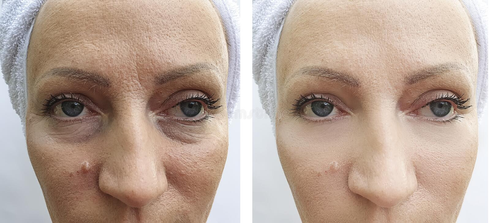Woman wrinkles removal before and after regeneration patient lifting tension procedures correction. Woman wrinkles  removal before after lifting procedures stock image