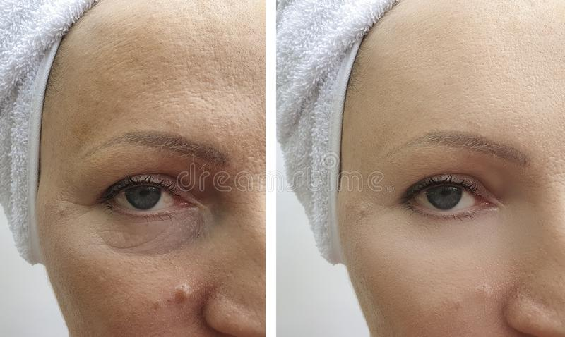 Woman wrinkles removal before and after treatment regeneration patient lifting tension procedures correction. Woman wrinkles  removal before after lifting royalty free stock photo