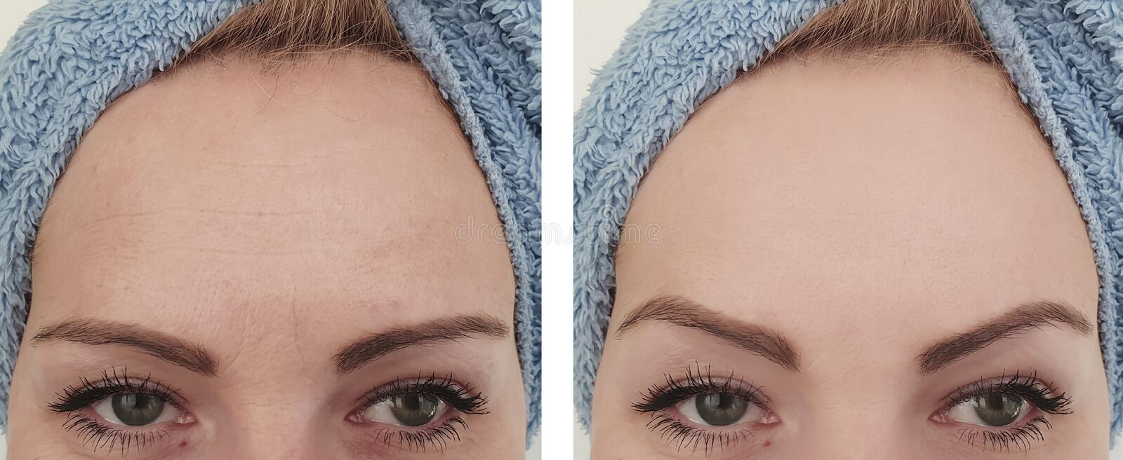Woman wrinkles before and after removal procedures. Woman wrinkles before  after removal procedures stock photo