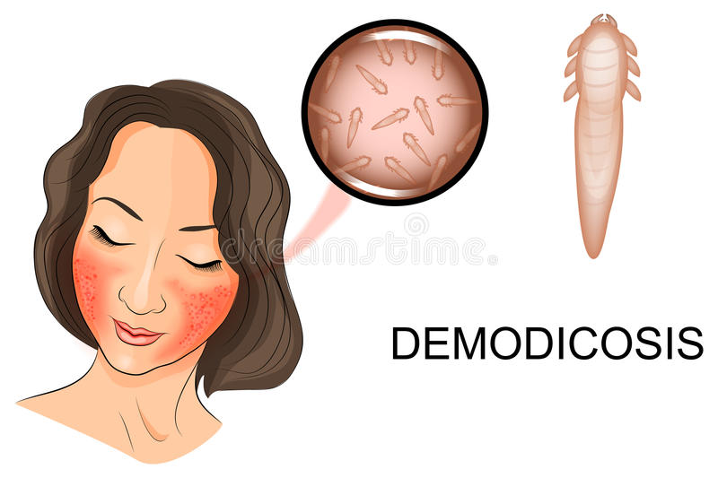 The womans face affected by demodicosis. Illustration of a womans face affected by demodicosis. Demodex mite under magnification vector illustration