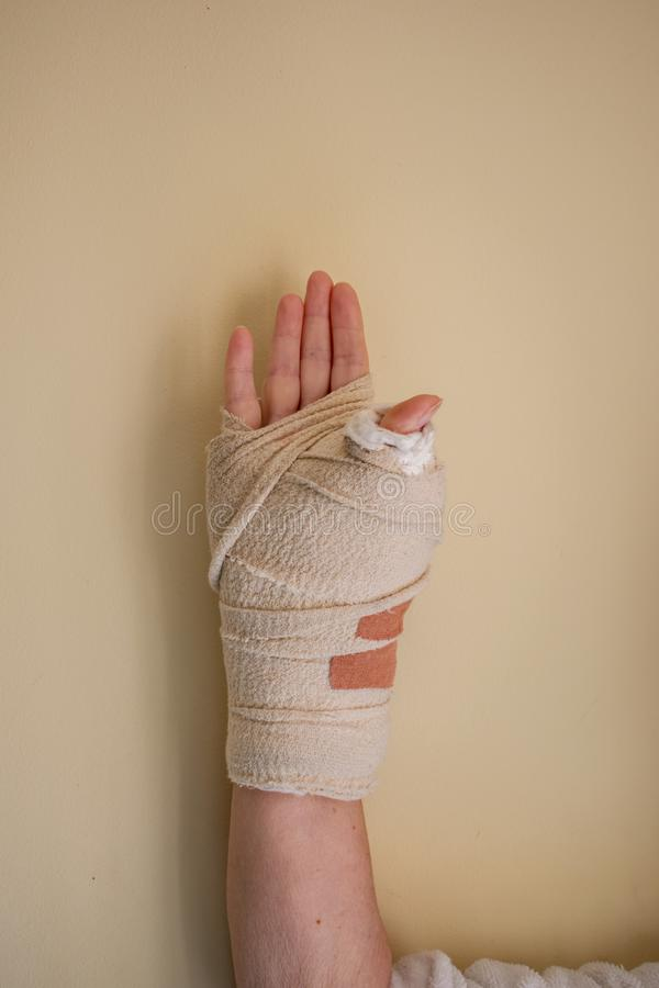 A womans wrist in a heavy cast after a thumb operation stock photo
