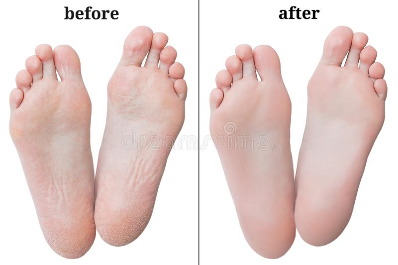 Women feet before and after peeling. royalty free stock image