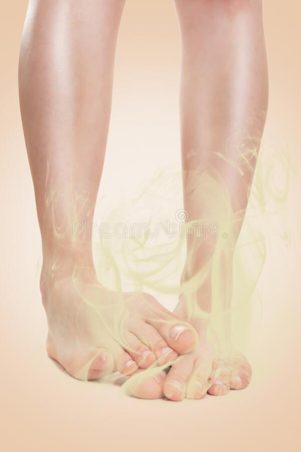 Women`s club-footed feet, exuding a stinking smell. Beige background. Close up. Concept of foot and nail fungus, skin diseases.  stock images