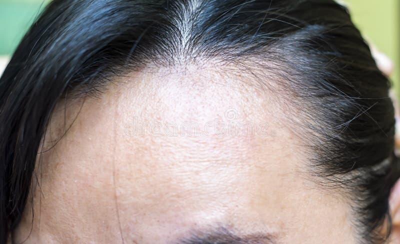 Women`s hair loss problem.It`s serious problem  of women.  stock photos