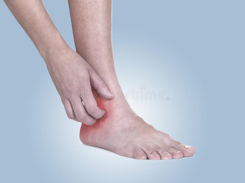 Women scratch itchy ankle with hand. stock image