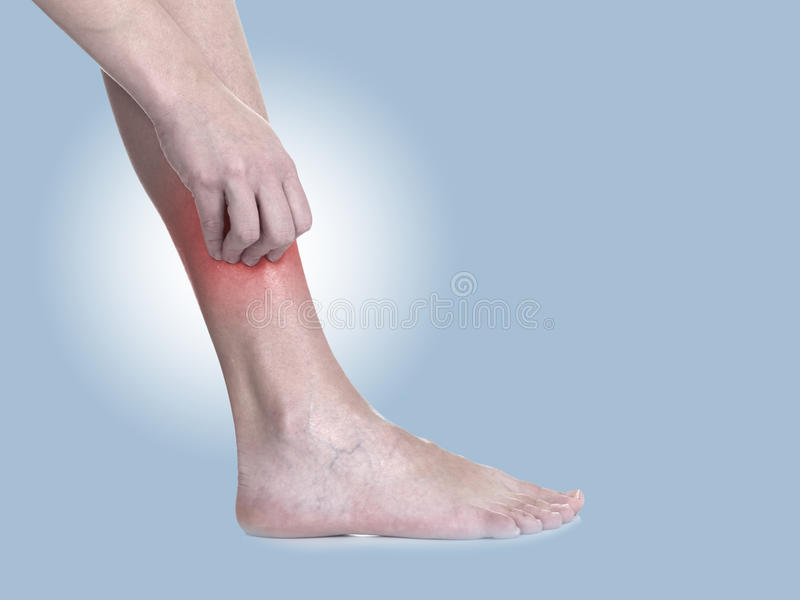 Women scratch itchy leg with hand. royalty free stock photo