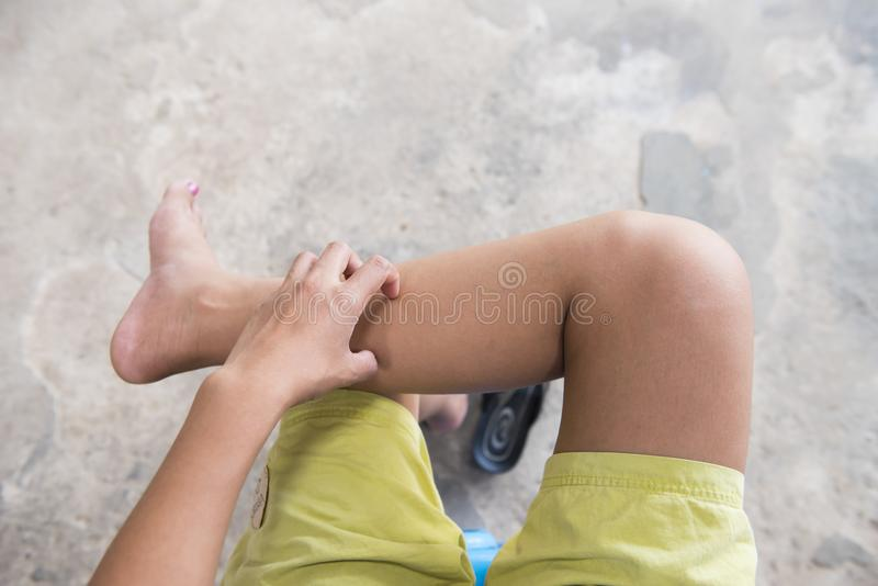 Women scratch their legs at outdoor stock images