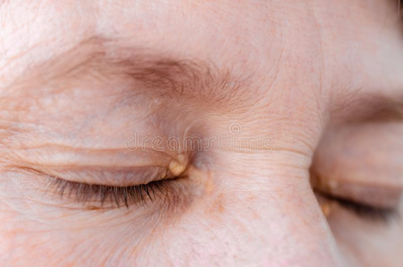 Womens eyelids with small growths due to disorders of lipid metabolism. Medical and cosmetology problem royalty free stock photography