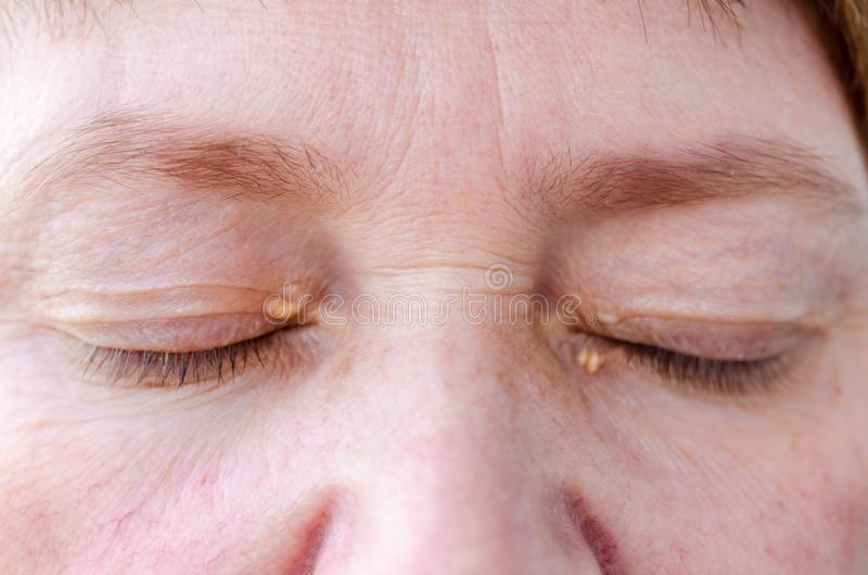 Womens eyelids with small growths due to disorders of lipid metabolism. Medical and cosmetology problem royalty free stock photo