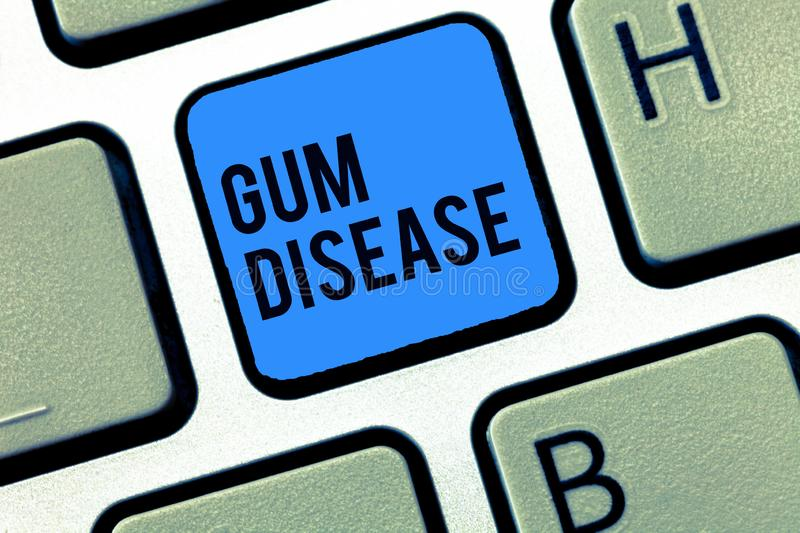 Word writing text Gum Disease. Business concept for Inflammation of the soft tissue Gingivitis Periodontitis.  stock photos