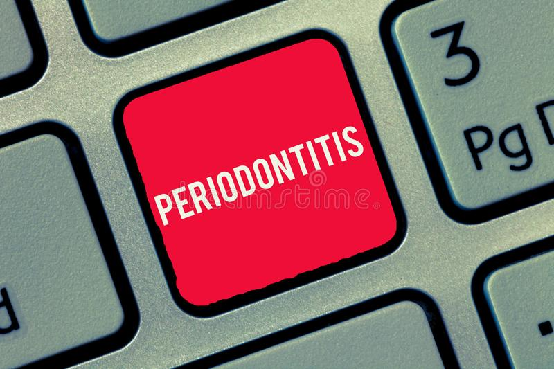 Word writing text Periodontitis. Business concept for Swelling of the tissue around the teeth Shrinkage of the gums.  royalty free stock photos