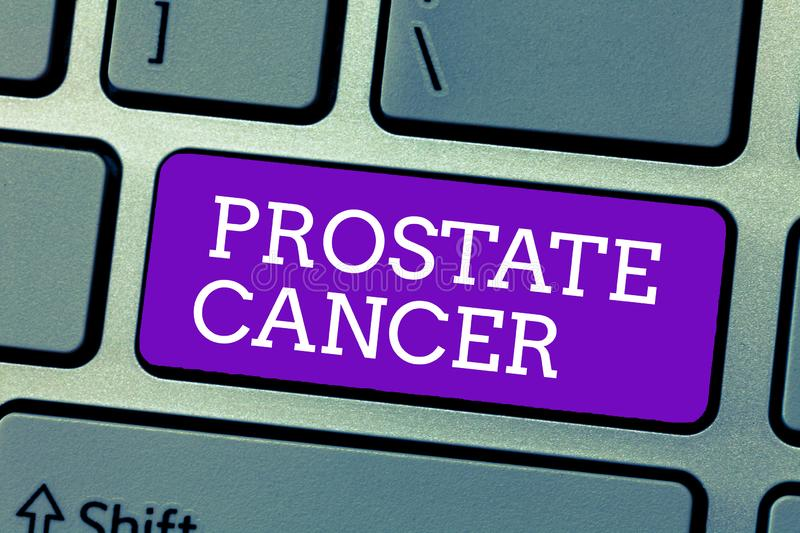 Word writing text Prostate Cancer. Business concept for Cancer that occurs in the gland of male reproductive system.  stock photography