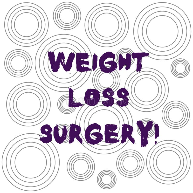 Word writing text Weight Loss Surgery. Business concept for do on stomach intestines to help demonstrating extreme. Obesity Multiple Layer Concentric Circles stock illustration