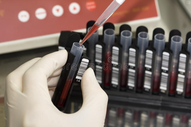 Work with blood. Scientist put the blood into the tube stock photography