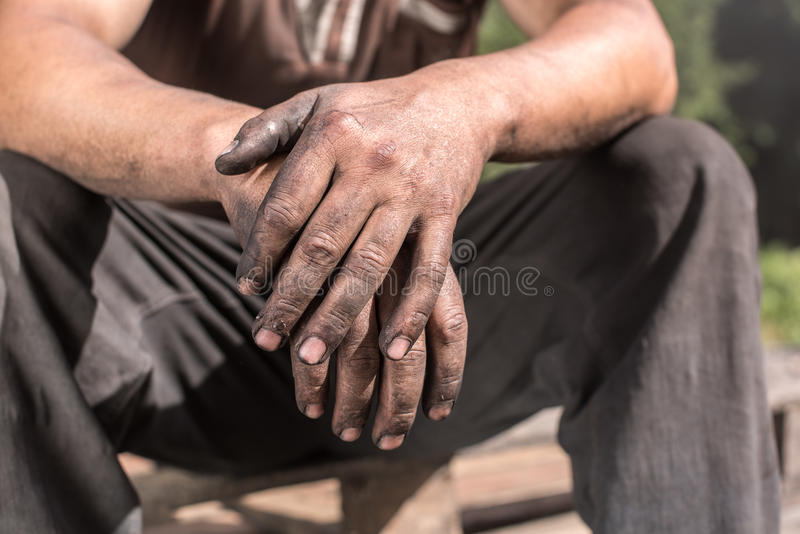 Man showing dirty hands palms down. stock photo