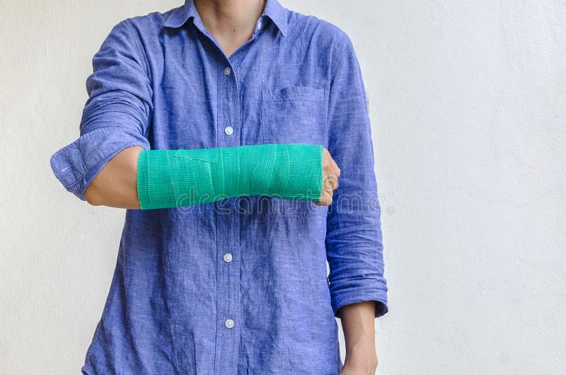 Worker woman accident on arm with green cast.  stock images