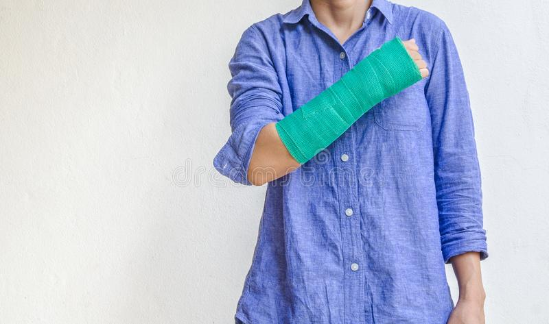 Worker woman accident on arm with green cast.  stock photos