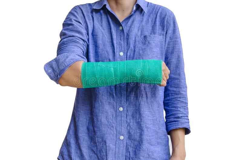 Worker woman accident on arm with green cast isolated on white.  royalty free stock photos