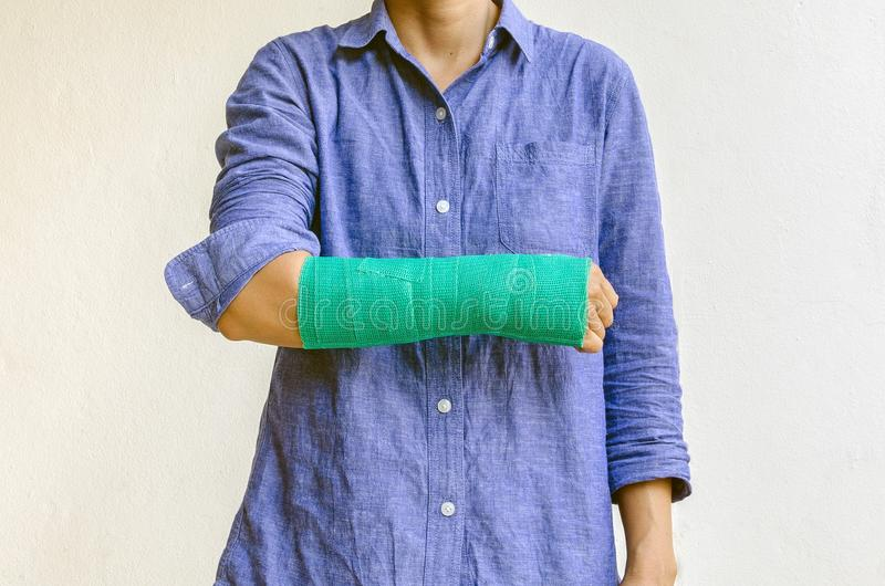 Worker woman accident on arm with green cast.  royalty free stock image