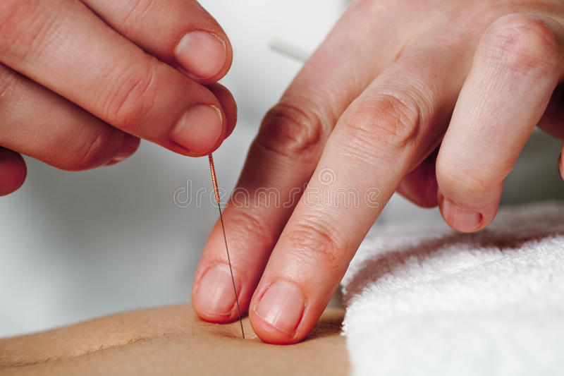 Working hands of acupuncture
