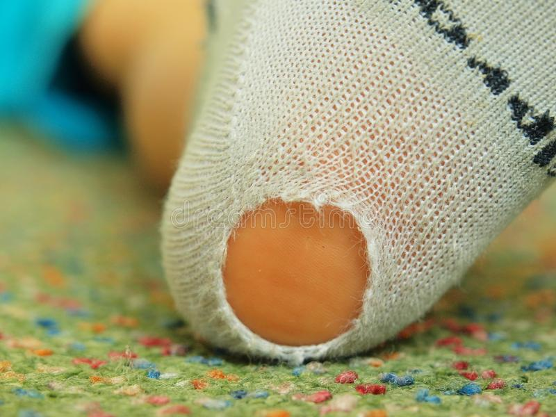 Worn out sock. Worn children socks with a hole and pink skin of children heel. In it royalty free stock photo