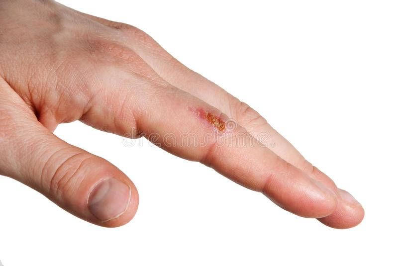 Wound at a finger royalty free stock photography