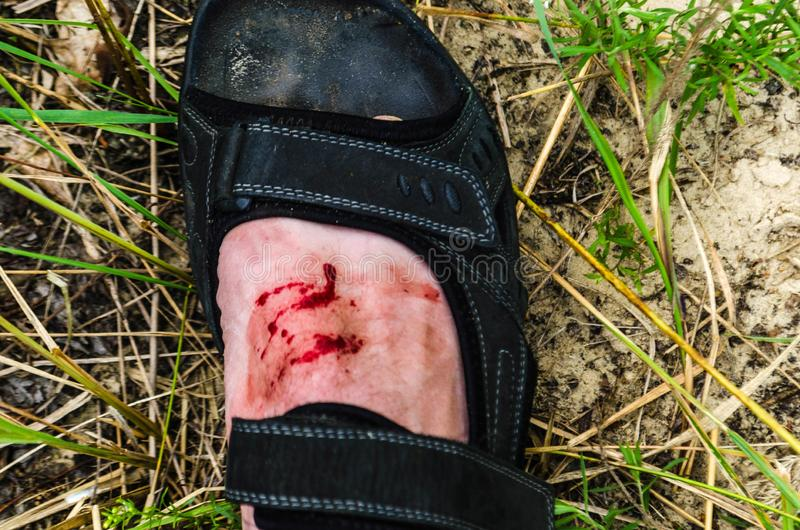 Blood on the leg. Open wound. Wound on foot. Flowing blood. Bite royalty free stock image