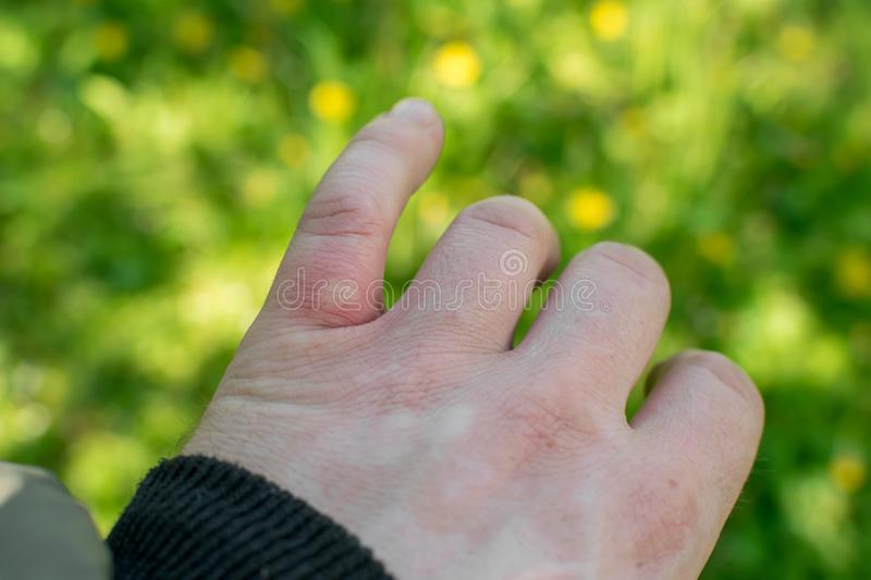Wound, injury from a mosquito bite on a finger in the forest. In nature royalty free stock image