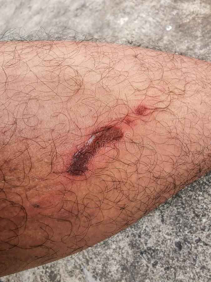 Wound on the leg - Cause of the wound caused to touch a hot motorcycle exhaust or hot iron. And having a burning pain And the stock photo