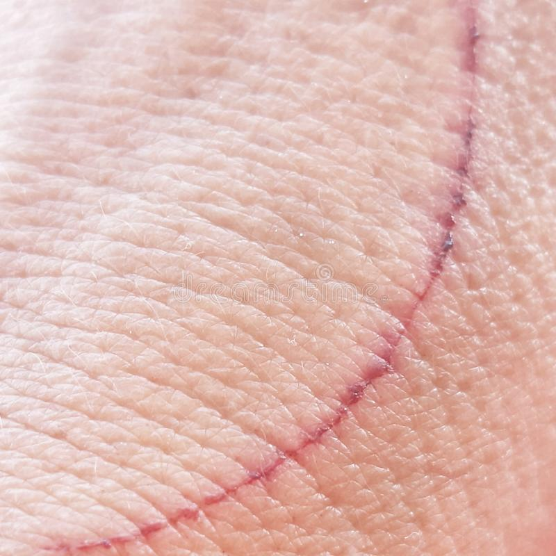 Wound Scar on skin. Small circular scar on hand skin, with dry blood and showing hand pores. Scars, bloody, hurt, wound, wounds, hands, closeup royalty free stock photo