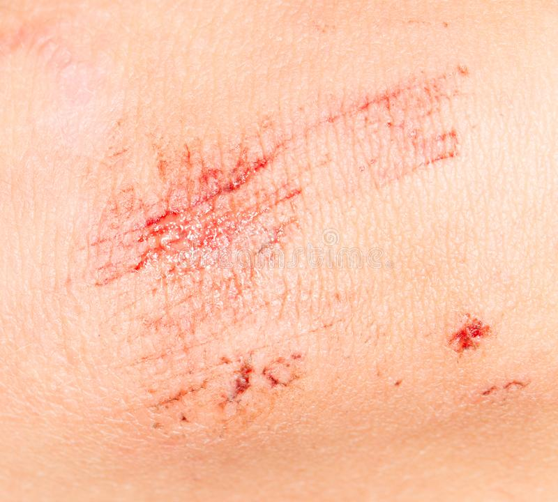 Wound on the skin. close-up stock image